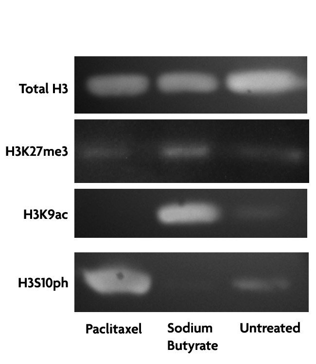 Histone Purification Microplate Kit preserves post-translational modifications