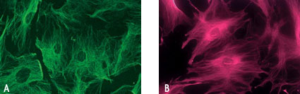 Chariot delivery of fluorescent Actin antibody into fixed and unfixed human fibroblast (HS-68) cells