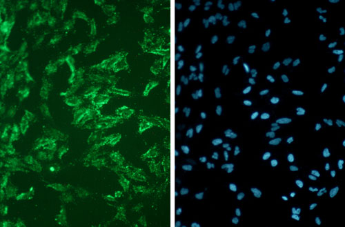PFA-fixed  HeLa cells stained by Chromeo LT Live Cell Membrane Stain from Active Motif