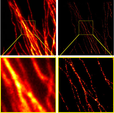 Comparison of conventional widefield microscopy and GSDIM microscopy