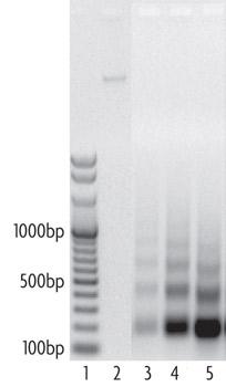 Efficiency of nucleosome digestion into mononucleosomes and oligonucleosomes