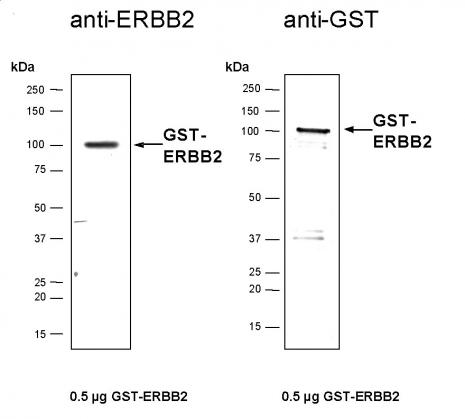 Recombinant ErbB-2 protein, active analyzed by SDS-PAGE gel.