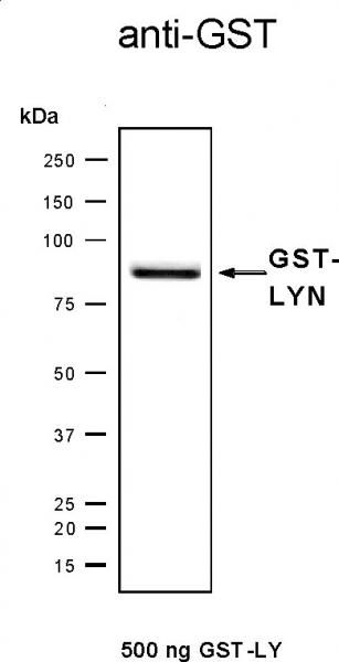 Recombinant Lyn protein, active analyzed by SDS-PAGE gel.
