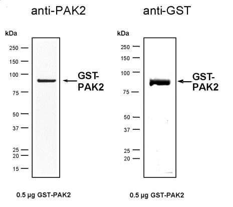 Recombinant PAK2 protein, active analyzed by SDS-PAGE gel.