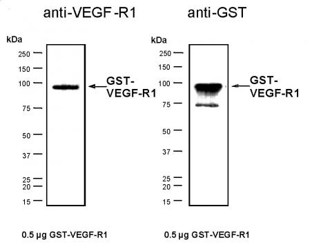 Recombinant VEGF-R1 protein, active analyzed by SDS-PAGE gel.