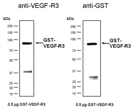 Recombinant VEGF-R3 protein, active analyzed by SDS-PAGE gel.