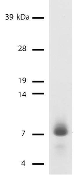 expression and purification of recombinant linker histone Linker histones establish and maintain higher-order chromatin structure eleven linker histone subtypes have been reported in mammals hils1 is a spermatid-specific linker histone, and its expression overlaps with the histone–protamine exchange process during mammalian spermiogenesis however, the.
