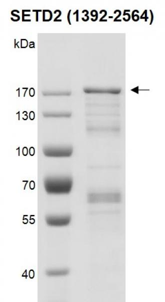 Recombinant SETD2 (1392-2564) protein gel.