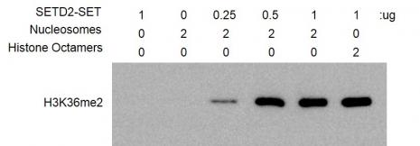 HMT Assay for Recombinant SETD2 (1392-2564) protein activity.