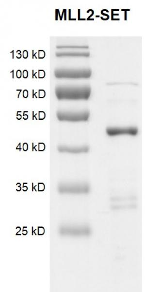 Recombinant KMT2D (MLL2)-SET protein Coomassie gel.