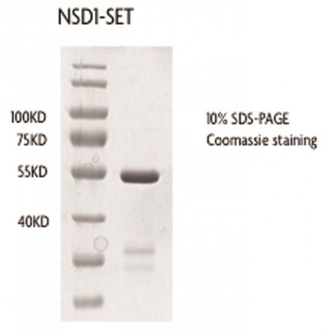 Recombinant NSD1-SET Coomassie gel