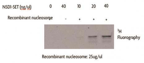 NSD1-SET activity assay using Recombinant Nucleosomes as substrates.