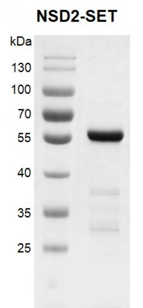 Recombinant NSD2 (MMSET)-SET protein gel.