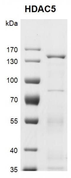 Recombinant HDAC5 protein gel.