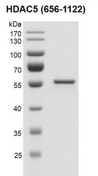 Recombinant HDAC5 (656-1122) protein gel.
