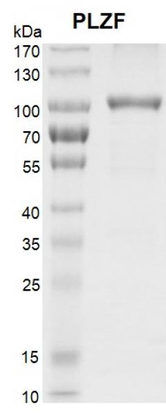 <b>Recombinant PLZF protein SDS-PAGE gel.</b>