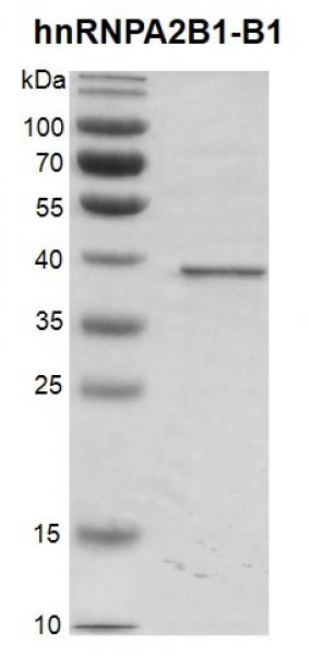 Recombinant hnRNPA2B1-B1 protein, SDS-PAGE gel.