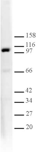 L3MBTL1 antibody (pAb) tested by Western blot.