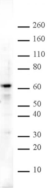 Aiolos antibody (pAb) tested by Western blot.
