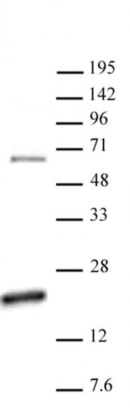 Histone H3R17me2a (asymmetric) antibody (pAb) tested by Western blot.