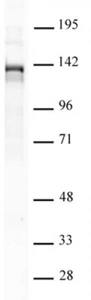 PHF8 antibody (pAb) tested by Western blot.