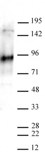 EZH2 antibody (pAb) tested by Western blot.