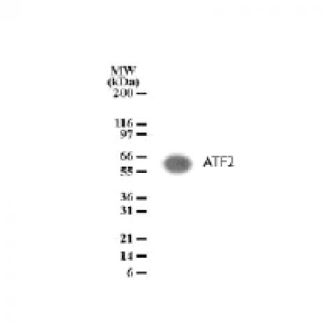 ATF-2 antibody (pAb) tested by Western blot.
