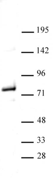 Menin antibody (pAb) tested by Western blot.