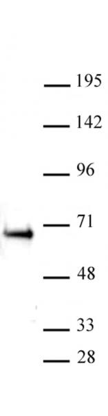 ETO / RUNX1T1 antibody (pAb) tested by Western blot.