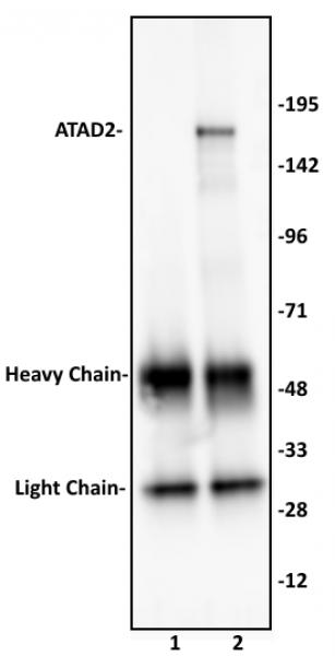 ATAD2 antibody (pAb) tested by immunoprecipitation.