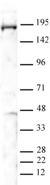 PBRM1 antibody (pAb) tested by Western blot.