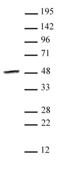 Smyd3 antibody (pAb) tested by Western blot.
