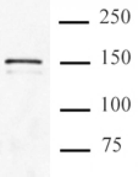 Cas9 antibody (mAb) tested by immunoprecipitation.