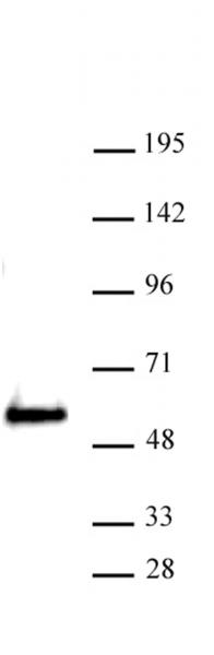 SMARCE1 antibody (pAb) tested by Western blot.