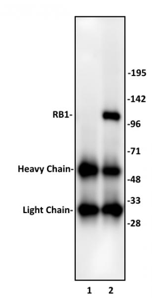 RB1 antibody (pAb) tested by immunoprecipitation.