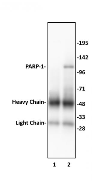 PARP-1 N-terminal antibody (pAb) tested by Western blot.