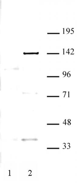 KDM4C antibody (pAb) tested by Western blot.