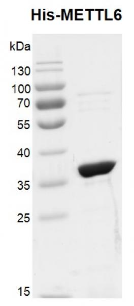 Recombinant METTL6, His-Tag, protein gel