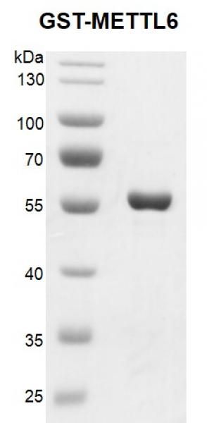Recombinant METTL6 GST-Tag, protein gel