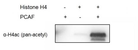 Western blot for recombinant PCAF activity