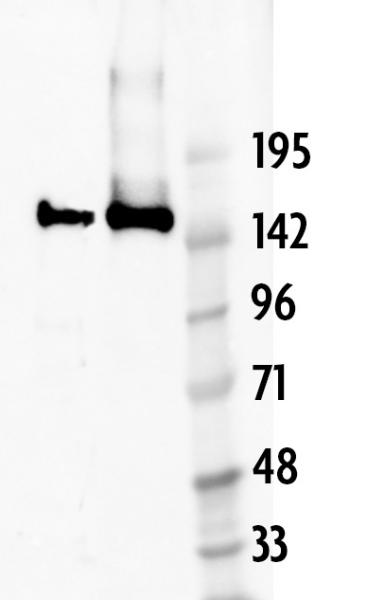 AbFlex<sup>®</sup> Cas9 antibody (rAb) tested by Western blot.
